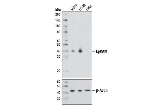 Western blot analysis of extracts from MCF7 (EpCAM positive), HT-29 (EpCAM positive), and HeLa (EpCAM negative) cells using EpCAM (D1B3) Rabbit mAb (upper) or β-Actin (D6A8) Rabbit mAb #8457 (lower).