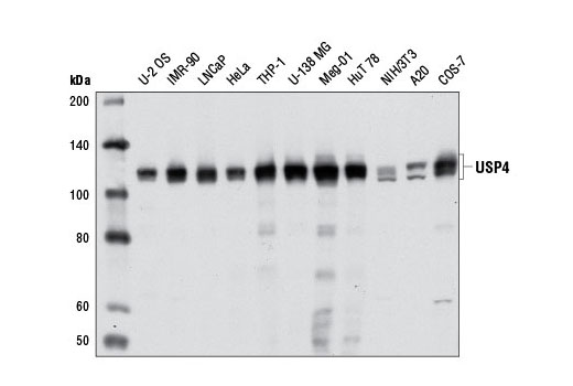 Polyclonal Antibody Western Blotting Regulation of Protein Ubiquitination - count 20