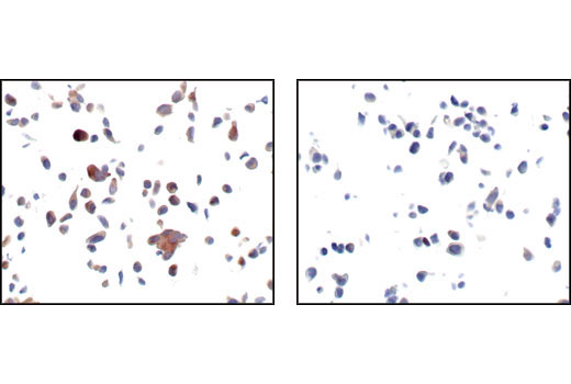 Image 17: Alzheimer's Disease Antibody Sampler Kit