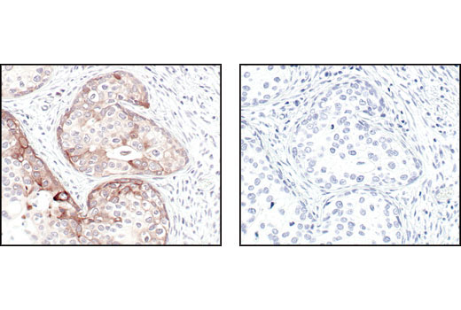 Image 8: Alzheimer's Disease Antibody Sampler Kit