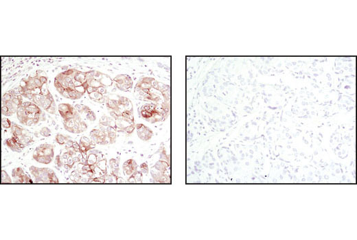 Image 24: Alzheimer's Disease Antibody Sampler Kit