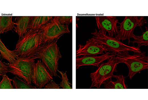 Confocal immunofluorescent analysis of HeLa cells, grown in phenol red-free media containing 5% charcoal-stripped FBS for 2 days and either untreated (left) or dexamethasone-treated (100 nM, 2hr; right), using Glucocorticoid Receptor (D8H2) XP® Rabbit mAb (green). Actin filaments were labeled with DY-554 phalloidin (red).
