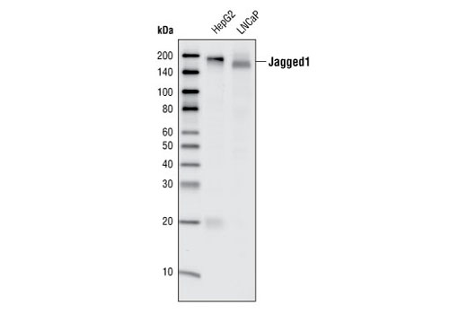 Western blot analysis of total cell lysates from HepG2 and LNCaP cells, using Jagged1 (28H8) Rabbit mAb.