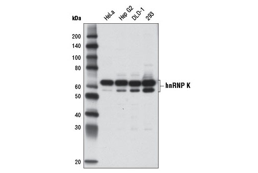 Monoclonal Antibody - hnRNP K (D9A8) Rabbit mAb - Immunoprecipitation, Western Blotting, UniProt ID P61978, Entrez ID 3190 #9081, Hnrpk