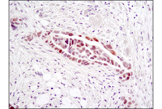 Immunohistochemical analysis of paraffin-embedded human ovarian serous adenocarcinoma using Chk2 (D9C6) XP<sup>®</sup> Rabbit mAb.