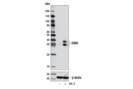 Western blot analysis of extracts from NK-92 cells, untreated (-) or treated (+) with Human Interleukin-2 (hIL-2) #8907 (10 ng/ml, overnight), using CISH (D4C10) Rabbit mAb (upper) and β-Actin (D6A8) Rabbit mAb #8457 (lower).