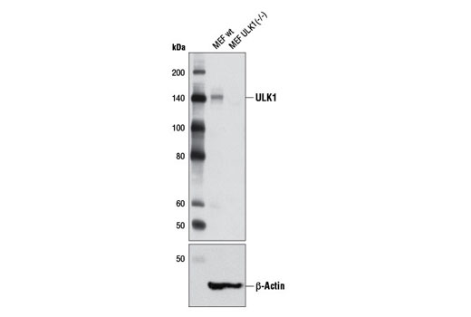 Western blot analysis of extracts from wild-type MEF and ULK1 (-/-) MEF cells using ULK1 (D8H5) Rabbit mAb (upper) and β-Actin (D6A8) Rabbit mAb #8457 (lower). MEF cells were kindly provided by Dr. Reuben Shaw (Salk Institute, La Jolla, CA).