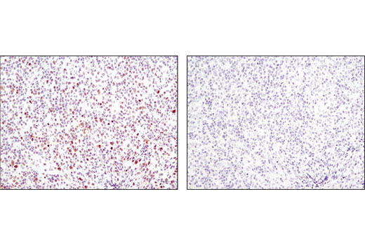 Immunohistochemical analysis of paraffin-embedded human lymphoma, control (left) or λ phosphatase-treated (right) using Phospho-Stat1 (Ser727) (D3B7) Rabbit mAb.