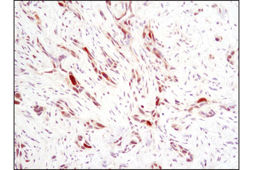 Immunohistochemical analysis of paraffin-embedded human breast carcinoma using Phospho-Stat1 (Ser727) (D3B7) Rabbit mAb.