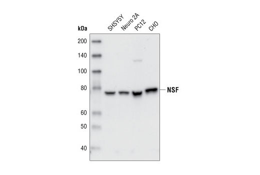 Western blot analysis of extracts from SHSY5Y, Neuro2A, PC12 and CHO cells using NSF Antibody.