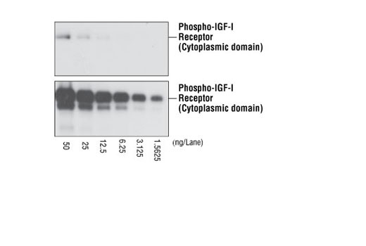 Cross-reactivity testing of Phospho-Insulin Receptor (Tyr1361) (84B2) Rabbit mAb with activated IGF-I receptors. Various amounts of activated recombinant IGF-I receptor cytoplasmic domain proteins were applied for Western blot analysis, using Phospho-Insulin Receptor (Tyr1361) (84B2) Rabbit mAb (upper) and Phospho-IGF-I Receptor (Tyr1315/1316) (19H7) Rabbit mAb #3024 (lower) respectively. The result showed that Phospho-Insulin Receptor (Tyr1361) (84B2) Rabbit mAb barely cross-reacts with activated IGF-I receptors.