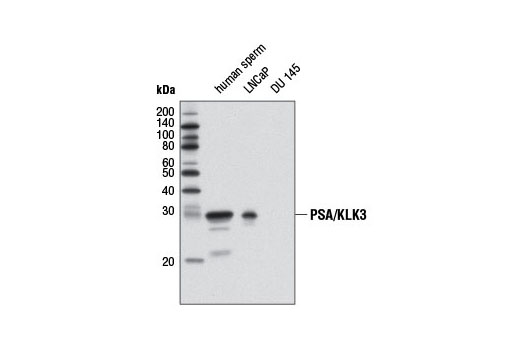 Western blot analysis of extracts from human sperm and LNCaP and DU 145 cells using PSA/KLK3 (D11E1) XP<sup>®</sup> Rabbit mAb. DU 145 cells are negative as expected.