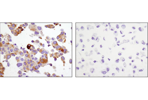 Immunohistochemical analysis of paraffin-embedded cell pellets, LNCaP (left) or DU 145 (right), using PSA/KLK3 (D11E1) XP<sup>®</sup> Rabbit mAb.