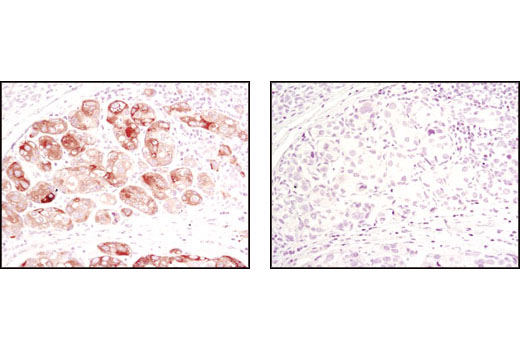 Immunohistochemical analysis of paraffin-embedded human breast carcinoma using Acetyl-CoA Carboxylase (C83B10) Rabbit mAb in the presence of control peptide (left) or Acetyl-CoA Carboxylase (C83B10) Blocking Peptide #1062 (right).