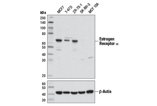 Western blot analysis of extracts from ER-positive (MCF7, T-47D, ZR-75-1) and ER-negative (SK-BR-3 and MCF 10A) cell lines using Estrogen Receptor α (D8H8) Rabbit mAb #8644 (upper) or β-Actin (D6A8) Rabbit mAb #8457 (lower).