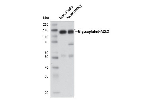 Image 12: Coronavirus Host Cell Attachment and Entry Antibody Sampler Kit