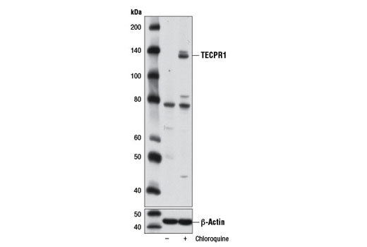 Western blot analysis of extracts from H-4-II-E cells, untreated (-) or treated (+) with chloroquine (50 μM, overnight), using TECPR1 (D6C10) Rabbit mAb (upper) and β-Actin (D6A8) Rabbit mAb #8457 (lower).