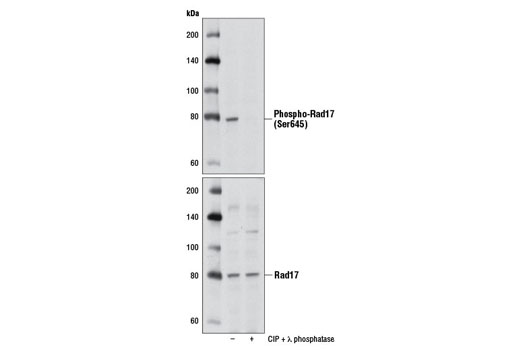 Western blot analysis of extracts from HeLa cells, untreated or treated with CIP and λ phosphatase, using Phospho-Rad17 (Ser645) (D5H5) Rabbit mAb (upper) or Rad17 (D3G6) Rabbit mAb #8561 (lower).