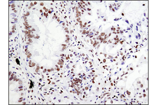 Immunohistochemical analysis of paraffin-embedded human lung carcinoma using RBPSUH (D10A4) XP<sup>®</sup> Rabbit mAb.