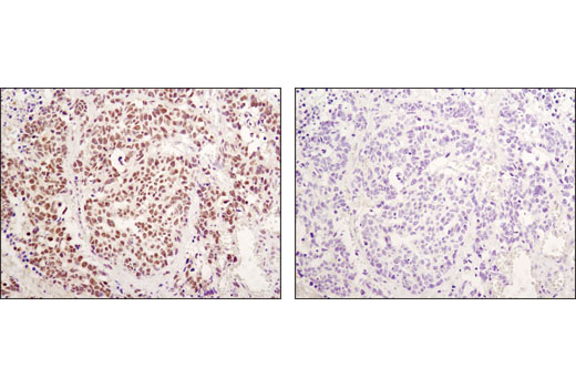 Immunohistochemical analysis of paraffin-embedded human lung carcinoma using RBPSUH (D10A4) XP<sup>®</sup> Rabbit mAb in the presence of control peptide (left) or antigen-specific peptide (right).