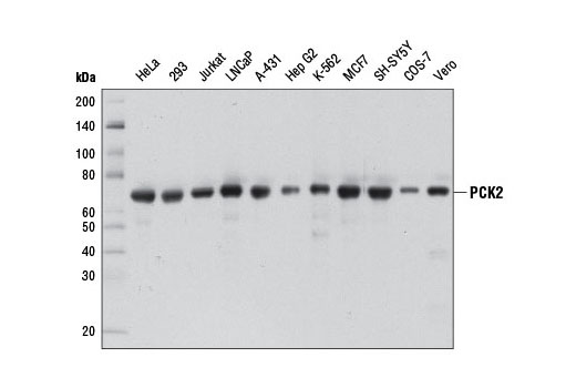 Monoclonal Antibody Phosphoenolpyruvate Carboxykinase Activity