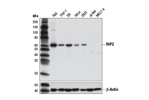 Western blot analysis of extracts from various cell lines using RIP2 (D10B11) Rabbit mAb (upper) or β-Actin (D6A8) Rabbit mAb #8457 (lower).