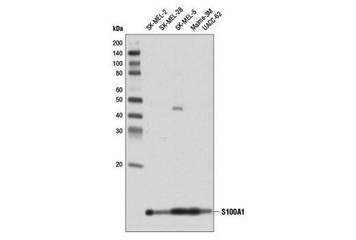Western blot analysis of extracts from various cell lines using S100A1 Antibody.