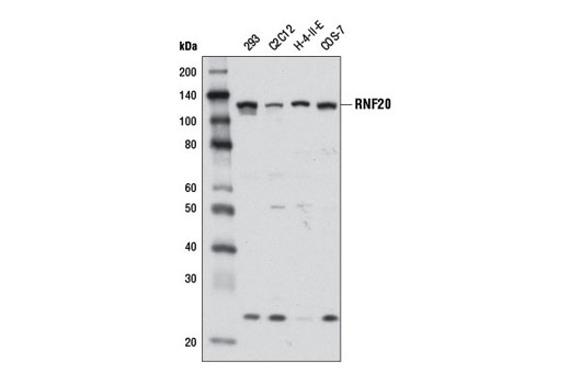 Western blot analysis of extracts from various cell lines using RNF20 (D8C2) Rabbit mAb.