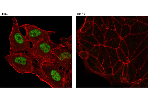 Confocal immunofluorescent analysis of HeLa (positive; left) and HCT-15 (negative; right) cells using ID3 (D16D10) Rabbit mAb (green). Actin filaments were labeled with DY-554 phalloidin (red).