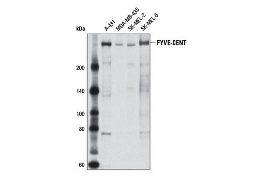 Polyclonal Antibody - FYVE-CENT Antibody - Immunoprecipitation, Western Blotting, UniProt ID Q68DK2, Entrez ID 23503 #8532, Cytoskeletal Signaling