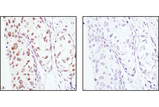 Immunohistochemical analysis of paraffin-embedded human breast carcinoma, using PA28γ Antibody in the presence of control peptide (left) or antigen-specific peptide (right).