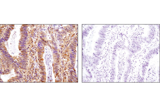 Immunohistochemical analysis of paraffin-embedded human colon carcinoma using Stat3α (D1A5) XP<sup>®</sup> Rabbit mAb in the presence of control peptide (left) or antigen-specific peptide (right).