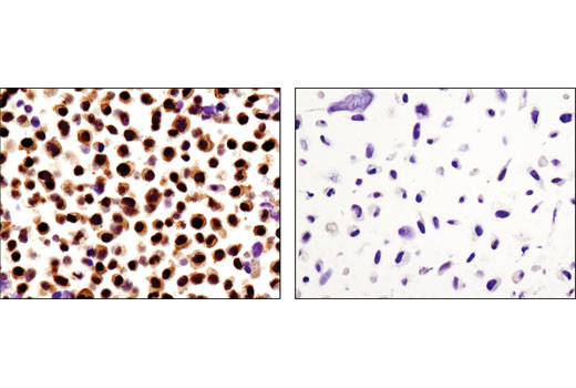 Immunohistochemical analysis of paraffin-embedded cell pellets, HeLa (left) or PC-3 (right), using Stat3α (D1A5) XP<sup>®</sup> Rabbit mAb.