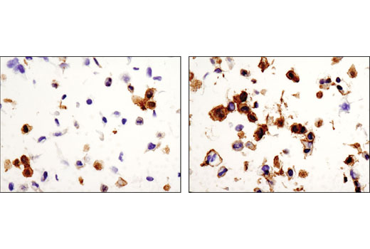 Immunohistochemical analysis of paraffin-embedded SNB19 cell pellets, control (left) or 10% FBS-treated (right), using Phospho-EphA2 (Ser897) (D9A1) Rabbit mAb.