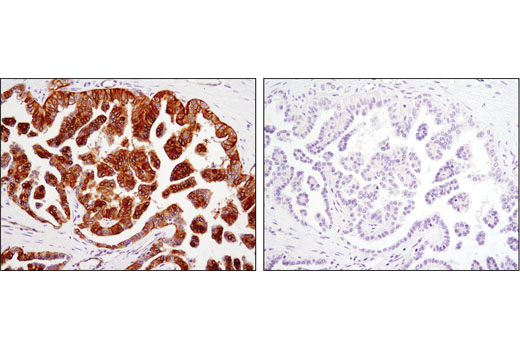 Immunohistochemical analysis of paraffin-embedded human ovarian carcinoma, control (left) or λ phosphatase-treated (right), using Phospho-EphA2 (Ser897) (D9A1) Rabbit mAb.