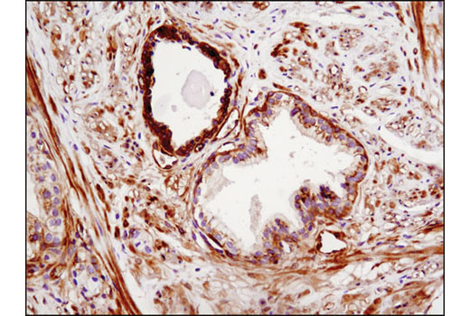 Immunohistochemical analysis of paraffin-embedded human prostate carcinoma using Phospho-EphA2 (Ser897) (D9A1) Rabbit mAb.