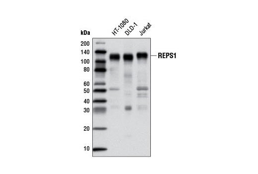 Monoclonal Antibody - REPS1 (D6F4) Rabbit mAb - Immunoprecipitation, Western Blotting, UniProt ID Q96D71, Entrez ID 85021 #6404 - Protein Folding and Trafficking