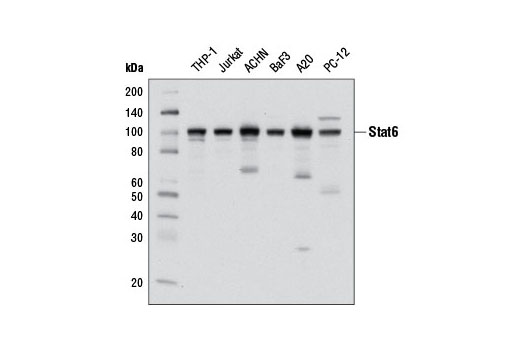 Western blot analysis of extracts from various cell lines using Stat6 (D3H4) Rabbit mAb.