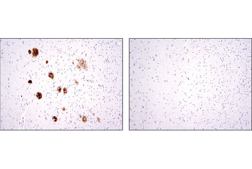 Immunohistochemical analysis of paraffin-embedded human Alzheimer's brain using β-Amyloid (D12B2) Rabbit mAb in the presence of control peptide (left) or antigen-specific peptide (right).