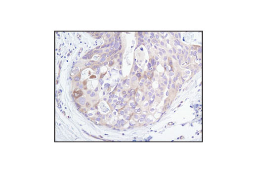 Immunohistochemical analysis of paraffin-embedded human breast carcinoma, using PP2A B Subunit (100C1) Rabbit mAb.