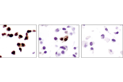 Immunohistochemical analysis of paraffin-embedded cell pellets, T-47D (high PR, left), MCF-7 (low PR, middle) and MDA-MB-231 (PR negative, right), using Progesterone Receptor A/B (D8Q2J) XP<sup>®</sup> Rabbit mAb.