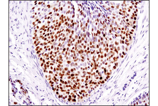 Immunohistochemical analysis of paraffin-embedded human infiltrating ductal breast carcinoma using Progesterone Receptor A/B (D8Q2J) XP<sup>®</sup> Rabbit mAb.