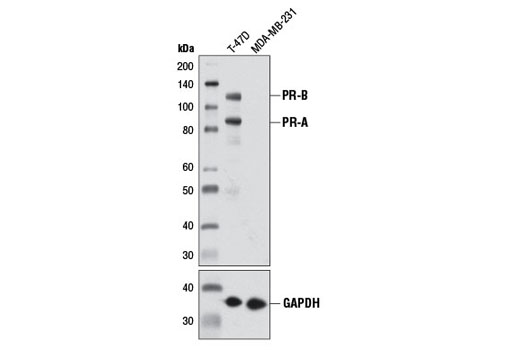 Western blot analysis of extracts from T-47D (PR positive) and MDA-MB-231 (PR negative) cells using Progesterone Receptor A/B (D8Q2J) XP<sup>®</sup> Rabbit mAb (upper) or GAPDH (D16H11) XP<sup>®</sup> Rabbit mAb #5174 (lower).