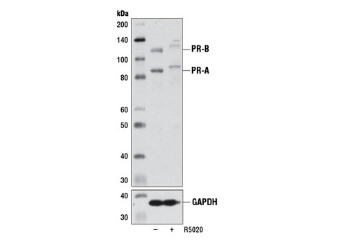 Western blot analysis of extracts from T-47D cells, grown for 48 hr in phenol red-free medium supplemented with 5% charcoal-stripped FBS and then treated with either a vehicle control (-) or promegestone (R5020, 100 nM, 16 hr; +), using Progesterone Receptor A/B (D8Q2J) XP<sup>®</sup> Rabbit mAb (upper) or GAPDH (D16H11) XP<sup>®</sup> Rabbit mAb #5174 (lower). Prolonged treatment of PR-expressing cells with R5020 is known to induce PR downregulation and hyperphosphorylation, which is reflected by slower migration on SDS-PAGE.