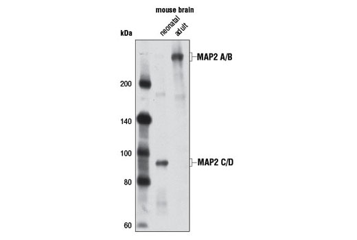 Western blot analysis of extracts from neonatal and adult mouse brain using MAP2 (D5G1) XP<sup>®</sup> Rabbit mAb.