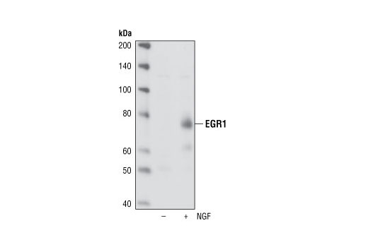 Western analysis of extracts from serum starved PC12 cells, untreated or NGF-treated (100 ng/ml NGF for 2 hours), using EGR1 (15F7) Rabbit mAb.