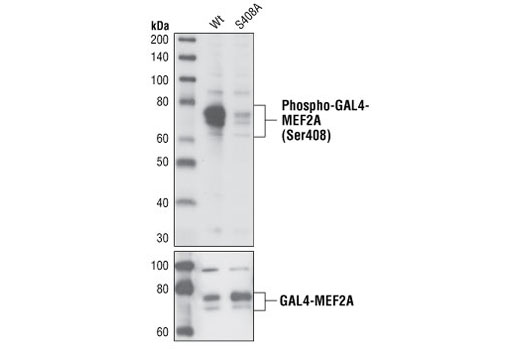 Western blot analysis of extracts from COS-7 cells transfected with wild-type GAL4-MEF2A or mutant GAL4-MEF2A (S408A), using Phospho-MEF2A (Ser408) Antibody (top) and MEF2A Antibody #9736 (bottom).