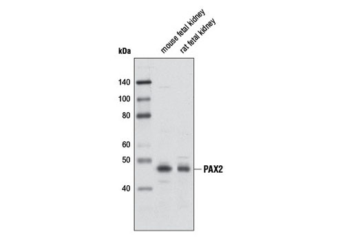 Polyclonal Antibody Immunoprecipitation Eye Development