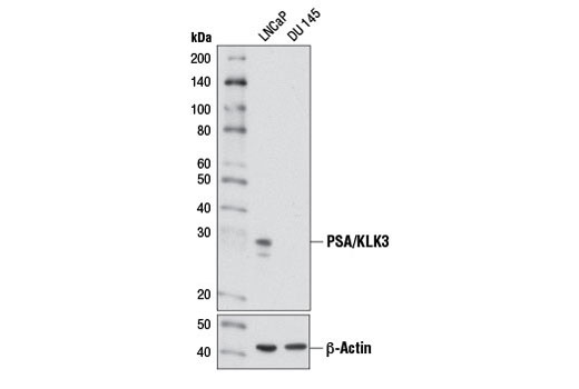 Western blot analysis of extracts from LNCaP (PSA positive) and DU 145 (PSA negative) cells using PSA/KLK3 (D6B1) XP<sup>®</sup> Rabbit mAb (upper) or β-Actin (D6A8) Rabbit mAb #8457 (lower).