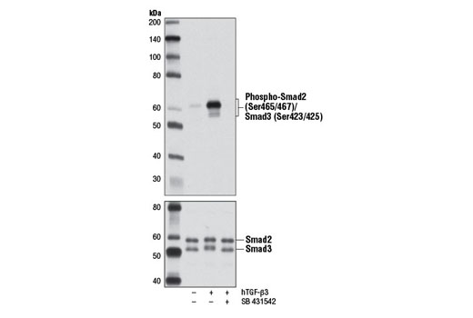 Western blot analysis of extracts from HaCaT cells, untreated (-) or treated with hTGF-β3 #8425 (+) in the absence or presence of the TGFR inhibitor SB 431542, using Phospho-Smad2 (Ser465/467)/Smad3 (Ser423/425) (D27F4) Rabbit mAb (upper) or Smad2/3 (D7G7) XP<sup>®</sup> Rabbit mAb #8685 (lower).